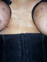 Huge tits busty free bikini beautiful